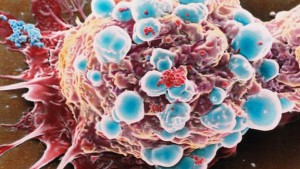 bbc_73508093_m1220213-coloured_sem_of_a_breast_cancer_cell-spl