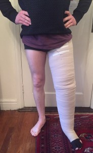 Multilayer bandaging of primary leg lymphedema (1)
