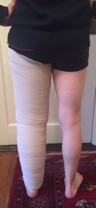 Multilayer bandaging of primary leg lymphedema (2)